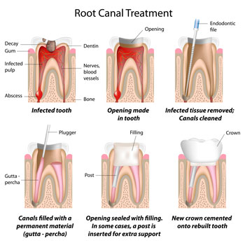 Root Canal Treatments - Dentist in Cherry Hill, Swedesboro, and Princton, NJ